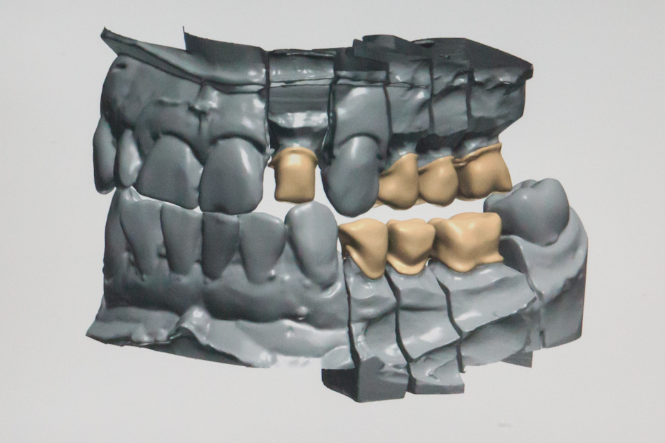 DENTAL TECHNIK CAD-CAM DIGITALE ZAHNHEILKUNDE – FOTOGRAFIE