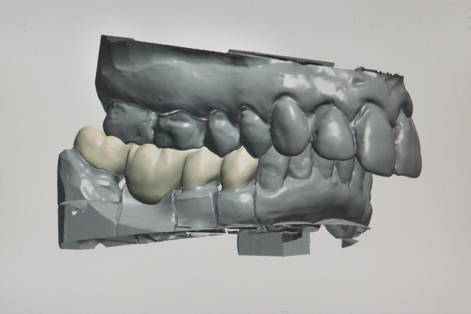 Metaux Precieux Dental Technik Stuttgart Zahntechnik CAD-CAM Digitale - Fotografie