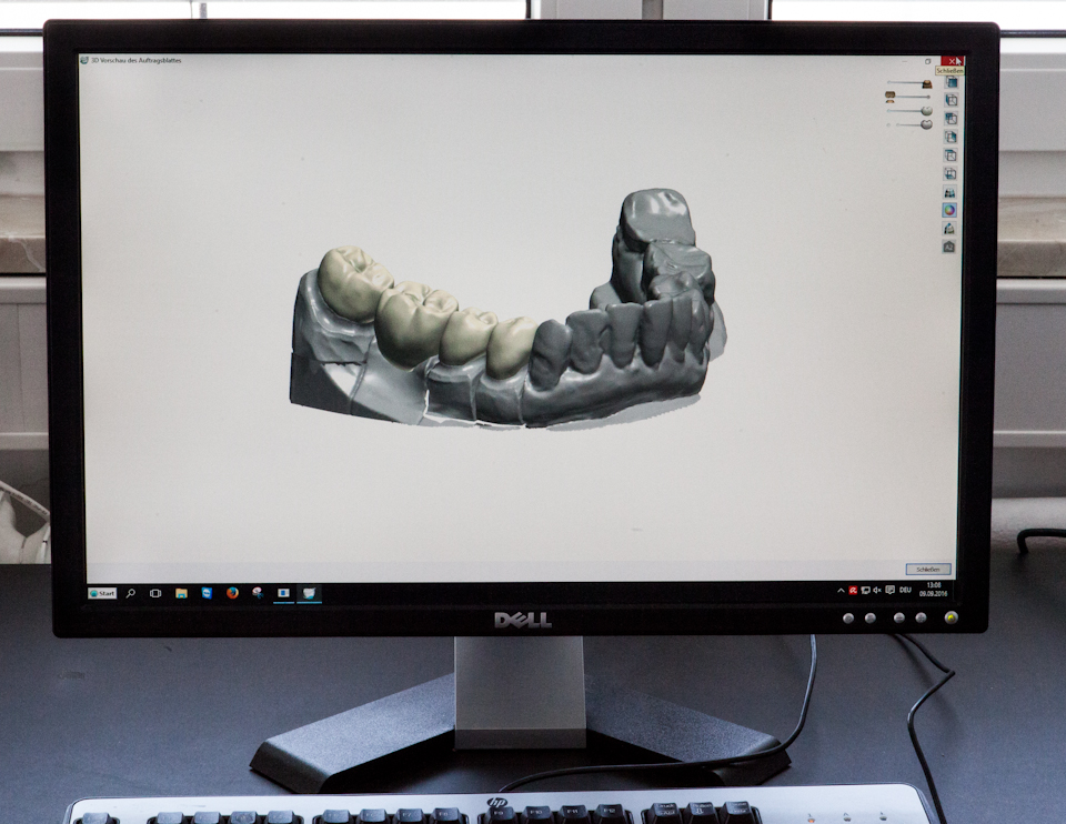 dentaltechnik cad cam digitale zahnheilkunde